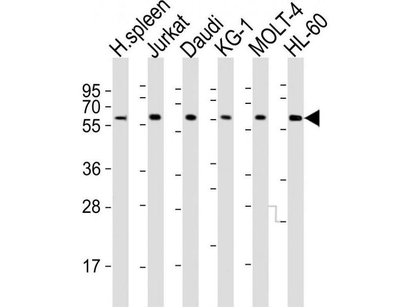 Western Blotting (WB) image for anti-Interleukin 2 Receptor, gamma (IL2RG) (AA 76-101), (N-Term) antibody (ABIN5533083)