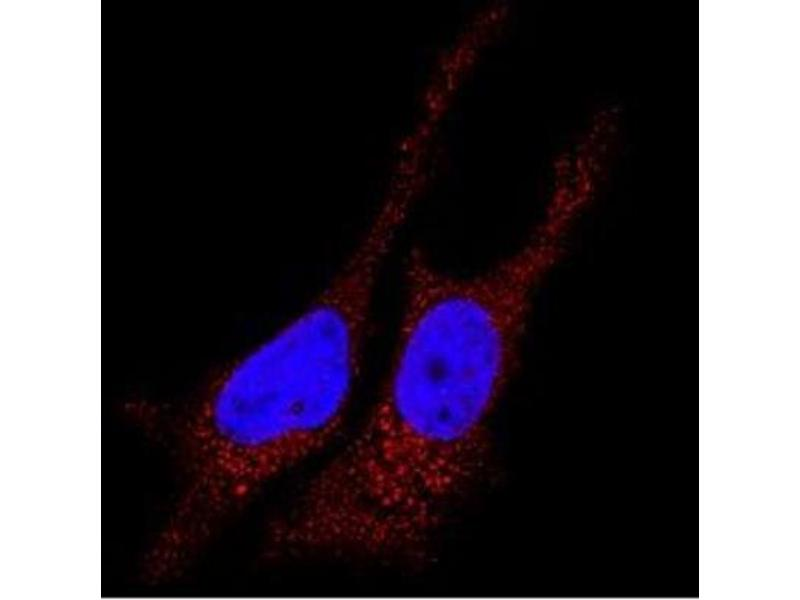 Immunofluorescence (IF) image for anti-Microtubule-Associated Protein 1 Light Chain 3 beta (MAP1LC3B) (N-Term) antibody (ABIN153145)