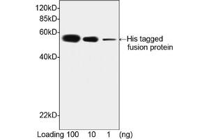 Image no. 5 for anti-His Tag antibody (ABIN300028)