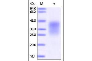 Image no. 1 for Programmed Cell Death 1 (PDCD1) (AA 25-167) (Active) protein (His tag) (ABIN2181605)