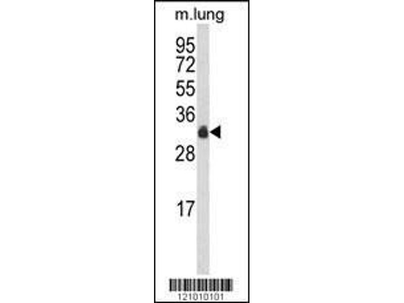 Western Blotting (WB) image for anti-MYD88 antibody (Myeloid Differentiation Primary Response Gene (88)) (AA 136-164) (ABIN652460)
