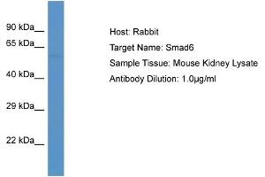 Western Blotting (WB) image for anti-SMAD, Mothers Against DPP Homolog 6 (SMAD6) (C-Term) antibody (ABIN2779803)