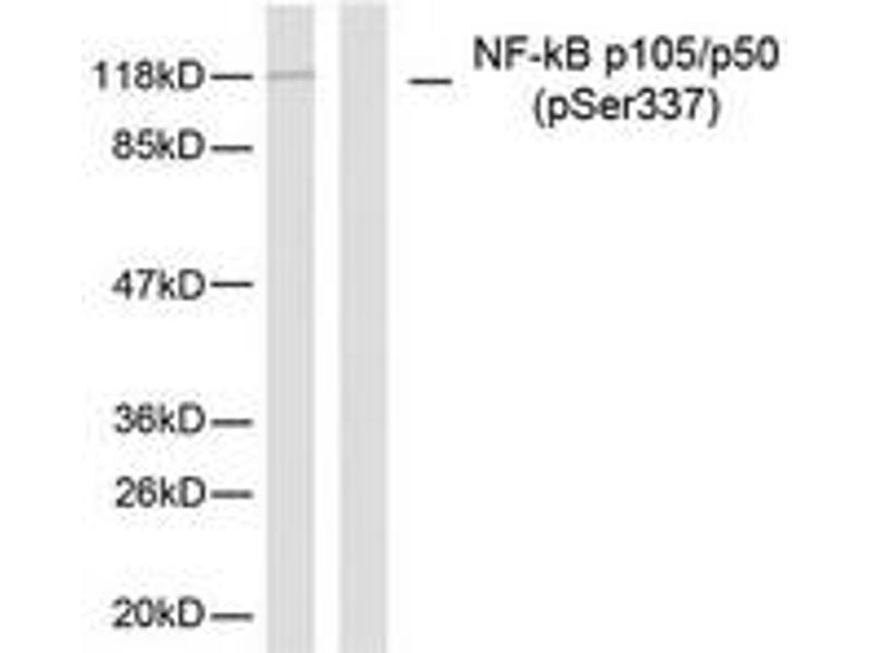 Western Blotting (WB) image for anti-NFKB1 antibody (Nuclear Factor of kappa Light Polypeptide Gene Enhancer in B-Cells 1) (pSer337) (ABIN1531920)