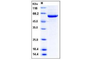 Image no. 1 for serine/threonine Kinase 4 (STK4) (AA 2-487) (Active) protein (His tag) (ABIN2004336)