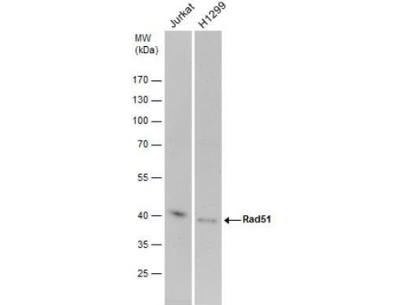 Western Blotting (WB) image for anti-RAD51 antibody (DNA Repair Protein Homolog 1) (ABIN151080)