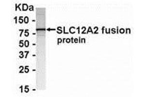 Western Blotting (WB) image for anti-Solute Carrier Family 12 (Potassium-Chloride Transporter) Member 2 (SLC12A2) (AA 114-285) antibody (ABIN2468176)