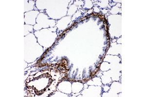 Image no. 6 for anti-Collagen, Type I, alpha 1 (COL1A1) (AA 1203-1218), (C-Term) antibody (ABIN3043986)