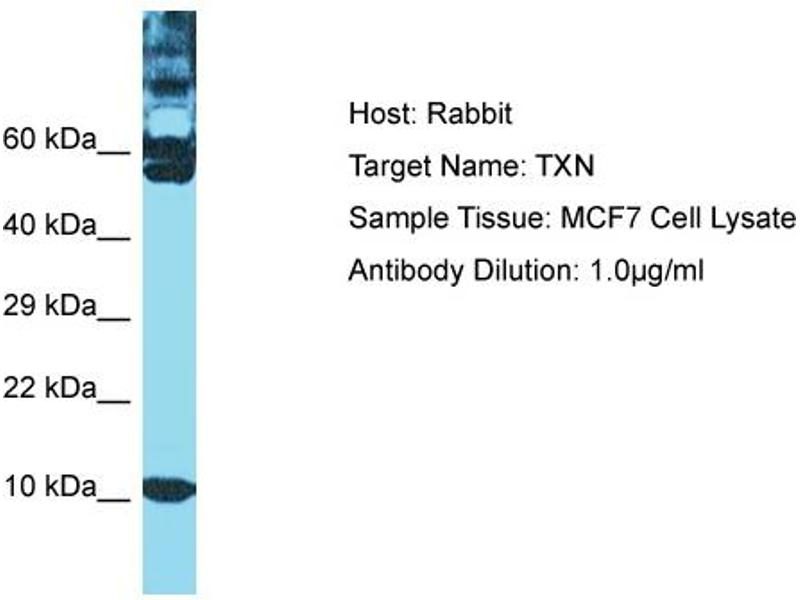 Western Blotting (WB) image for anti-Thioredoxin (TXN) (C-Term) antibody (ABIN2792061)