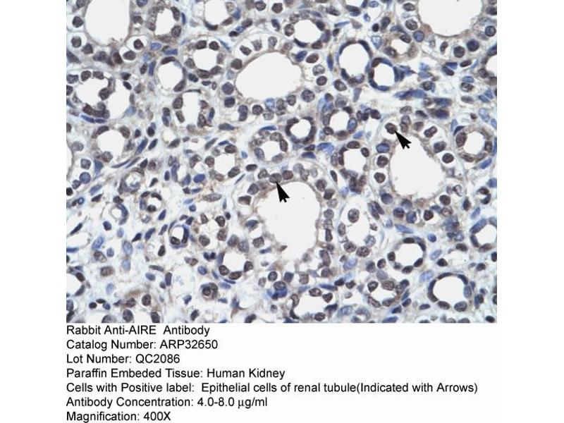 Immunohistochemistry (IHC) image for anti-Autoimmune Regulator (AIRE) (N-Term) antibody (ABIN2779777)