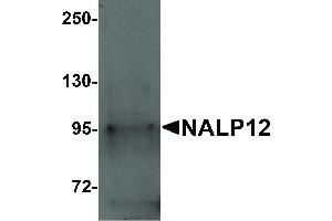 Image no. 1 for anti-NLR Family, Pyrin Domain Containing 12 (NLRP12) (N-Term) antibody (ABIN6656871)