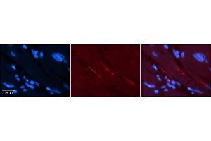 Image no. 4 for anti-Sodium Channel, Voltage-Gated, Type V, alpha Subunit (SCN5A) (N-Term) antibody (ABIN2776088)