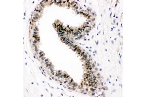 Image no. 1 for anti-Valosin Containing Protein (VCP) (AA 749-766), (C-Term) antibody (ABIN3043984)