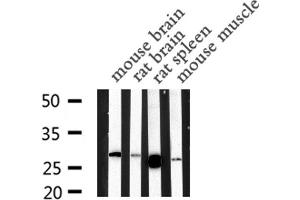 Image no. 2 for anti-Mannose-Binding Lectin (Protein C) 2, Soluble (MBL2) antibody (ABIN6259103)