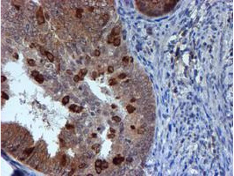 image for anti-RuvB-Like 2 (E. Coli) (RUVBL2) (AA 113-370) antibody (ABIN1490851)
