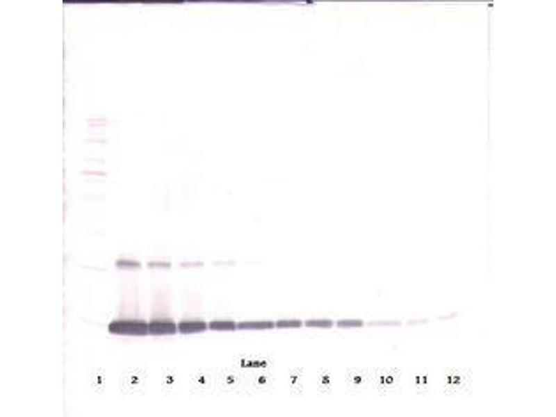 image for anti-Colony Stimulating Factor 2 (Granulocyte-Macrophage) (CSF2) antibody (ABIN465581)