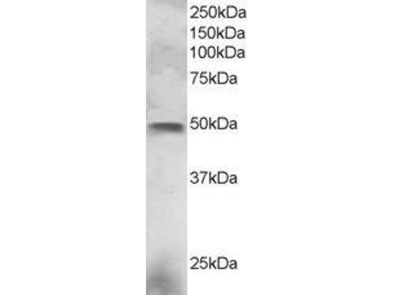 Western Blotting (WB) image for anti-ELF3 antibody (E74-Like Factor 3 (Ets Domain Transcription Factor, Epithelial-Specific)) (C-Term) (ABIN249576)