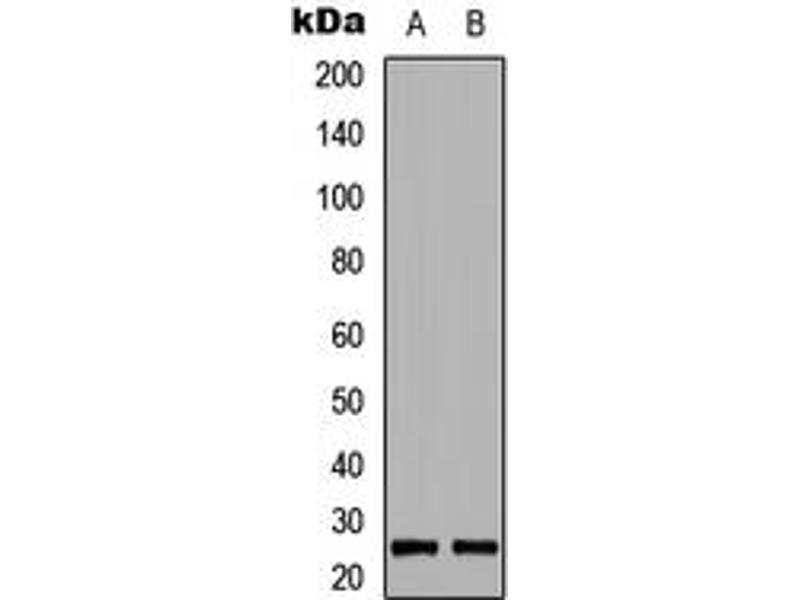 Western Blotting (WB) image for anti-BIM antibody (BCL2-Like 11 (Apoptosis Facilitator)) (pSer69) (ABIN2705596)