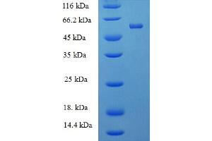 Image no. 1 for Protein tyrosine Phosphatase, Receptor Type, R (PTPRR) (AA 1-412), (full length) protein (His-SUMO Tag) (ABIN5711341)