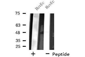 Image no. 2 for anti-Zinc Finger Protein 446 (ZNF446) antibody (ABIN6257569)