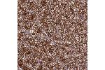 Immunohistochemistry (Paraffin-embedded Sections) (IHC (p)) image for anti-RAS Protein Activator Like 1 (GAP1 Like) (RASAL1) 抗体 (ABIN4349401)
