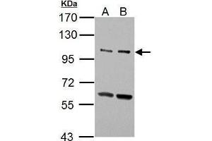 Western Blotting (WB) image for anti-Unc-51 Like Kinase 2 (C. Elegans) (ULK2) (AA 693-968), (AA 743-938) antibody (ABIN555752)