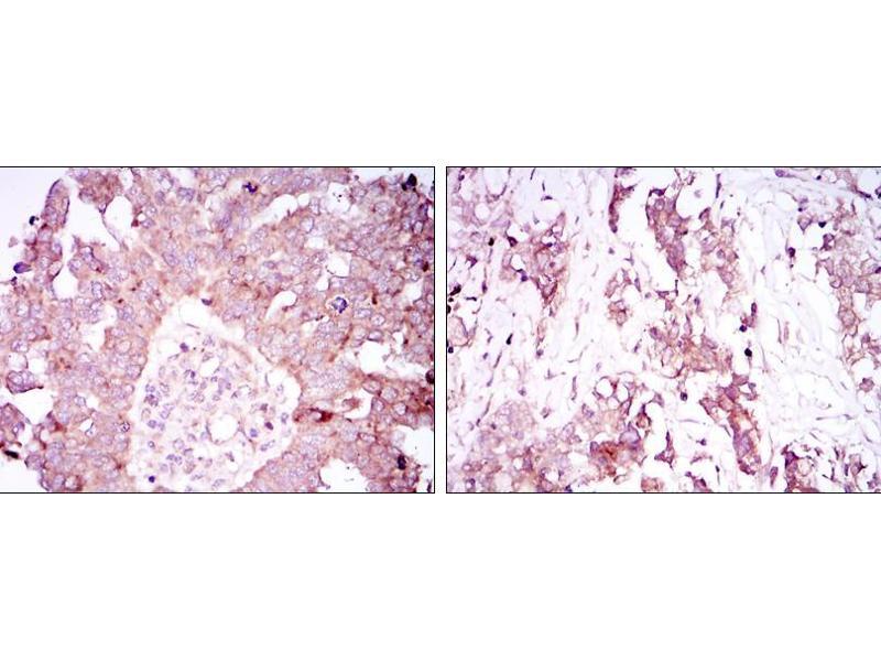 Immunohistochemistry (IHC) image for anti-Ataxin 1 antibody (ATXN1) (ABIN968970)