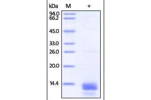 Image no. 1 for S100 Calcium Binding Protein A14 (S100A14) (AA 1-104) protein (His tag) (ABIN2181715)