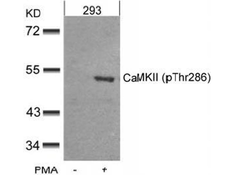 image for anti-Calcium/calmodulin-Dependent Protein Kinase II alpha (CAMK2A) (pThr286) antibody (ABIN197054)