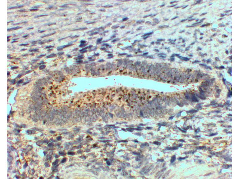 Immunohistochemistry (Paraffin-embedded Sections) (IHC (p)) image for anti-Secreted Frizzled-Related Protein 4 (SFRP4) (Internal Region) antibody (ABIN2559899)