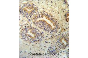Image no. 2 for anti-CWC15 Spliceosome-Associated Protein Homolog (S. Cerevisiae) (CWC15) (AA 123-152) antibody (ABIN5538854)