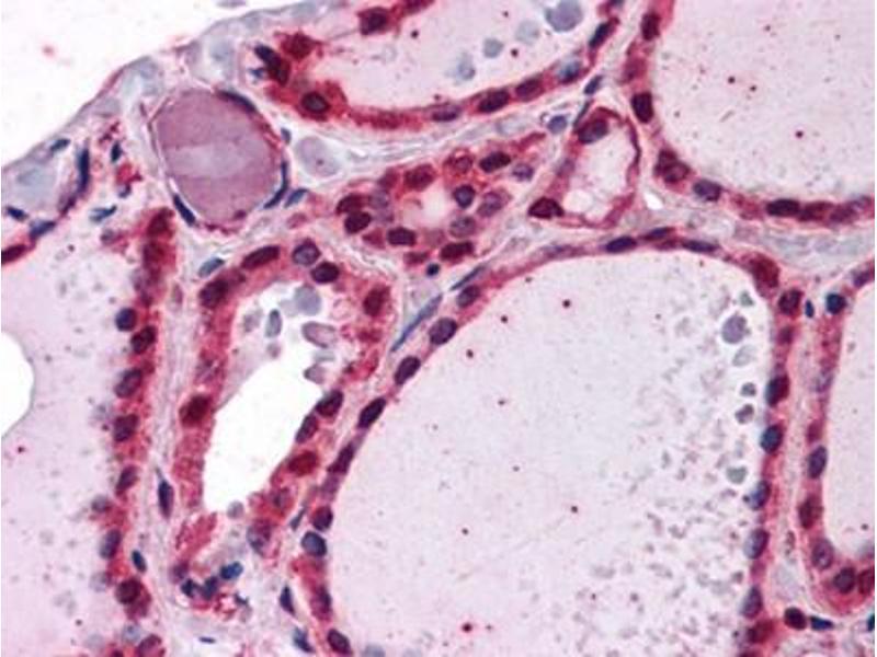 Immunohistochemistry (IHC) image for anti-IRAK1 antibody (Interleukin-1 Receptor-Associated Kinase 1) (AA 530-693) (ABIN614625)