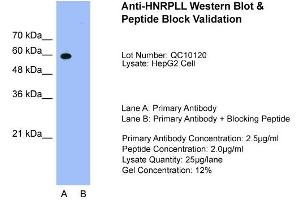 Western Blotting (WB) image for anti-Heterogeneous Nuclear Ribonucleoprotein L-Like (HNRPLL) (N-Term) antibody (ABIN184075)