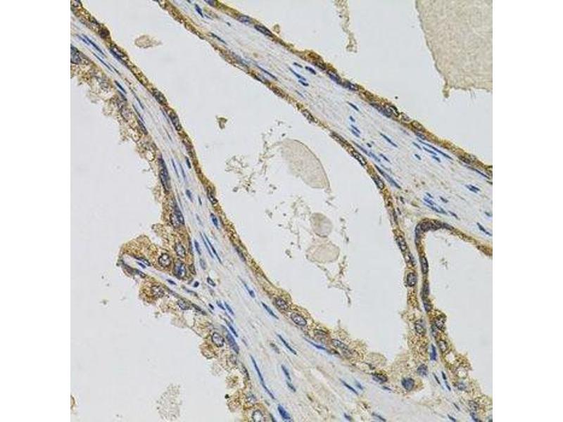 Immunohistochemistry (Paraffin-embedded Sections) (IHC (p)) image for anti-PTK7 Protein tyrosine Kinase 7 (PTK7) antibody (ABIN6146429)