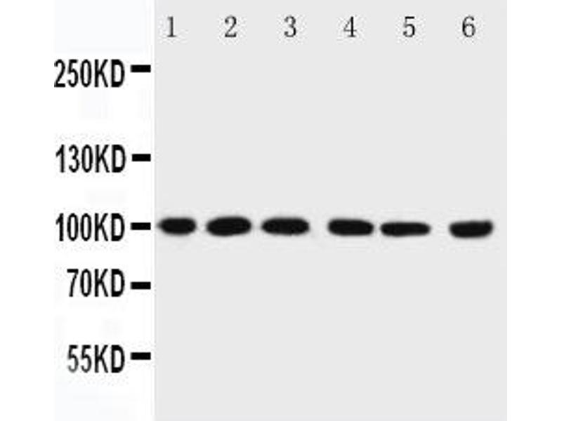 image for anti-Protein Inhibitor of Activated STAT, 1 (PIAS1) (AA 636-651) antibody (ABIN3032369)