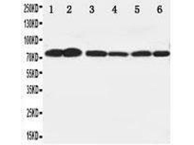 Western Blotting (WB) image for anti-V-Raf Murine Sarcoma Viral Oncogene Homolog B1 (BRAF) (N-Term) antibody (ABIN1585648)