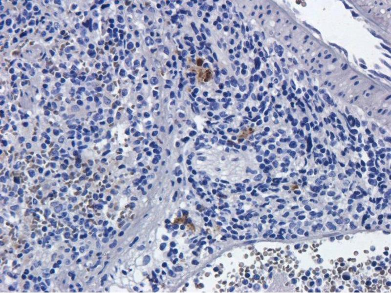 Immunohistochemistry (IHC) image for anti-Interleukin 2 Receptor, alpha (IL2RA) antibody (ABIN5668050)
