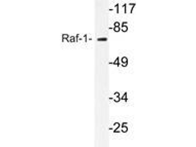Western Blotting (WB) image for anti-RAF1 antibody (V-Raf-1 Murine Leukemia Viral Oncogene Homolog 1) (ABIN498112)