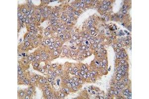 Immunohistochemistry (IHC) image for anti-PAK4 antibody (P21-Activated Kinase 4) (AA 156-187) (ABIN3032119)