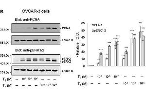 Image no. 13 for anti-Proliferating Cell Nuclear Antigen (PCNA) (Center) antibody (ABIN2854788)