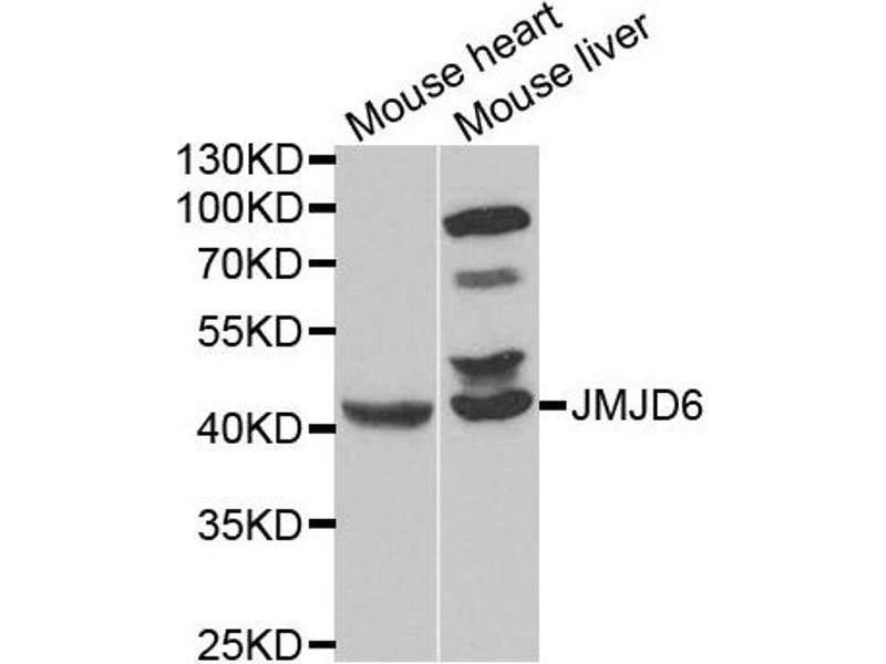 Western Blotting (WB) image for anti-Jumonji Domain Containing 6 (JMJD6) antibody (ABIN2563504)