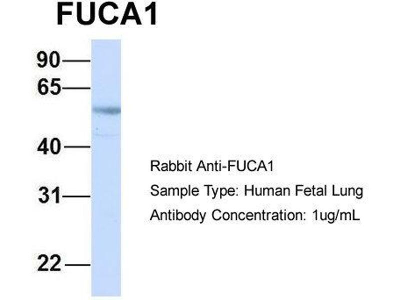 Western Blotting (WB) image for anti-Fucosidase, alpha-L- 1, Tissue (FUCA1) (Middle Region) antibody (ABIN2785640)