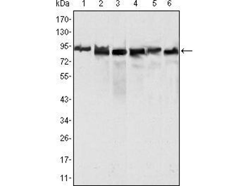 Western Blotting (WB) image for anti-MLH1 antibody (MutL Homolog 1, Colon Cancer, Nonpolyposis Type 2 (E. Coli)) (AA 381-483) (ABIN969285)