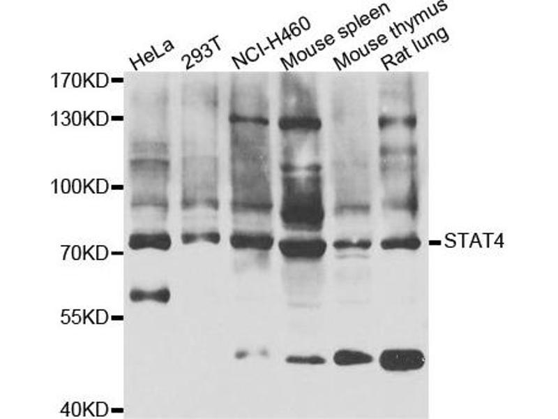 Western Blotting (WB) image for anti-Signal Transducer and Activator of Transcription 4 (STAT4) antibody (ABIN2560191)