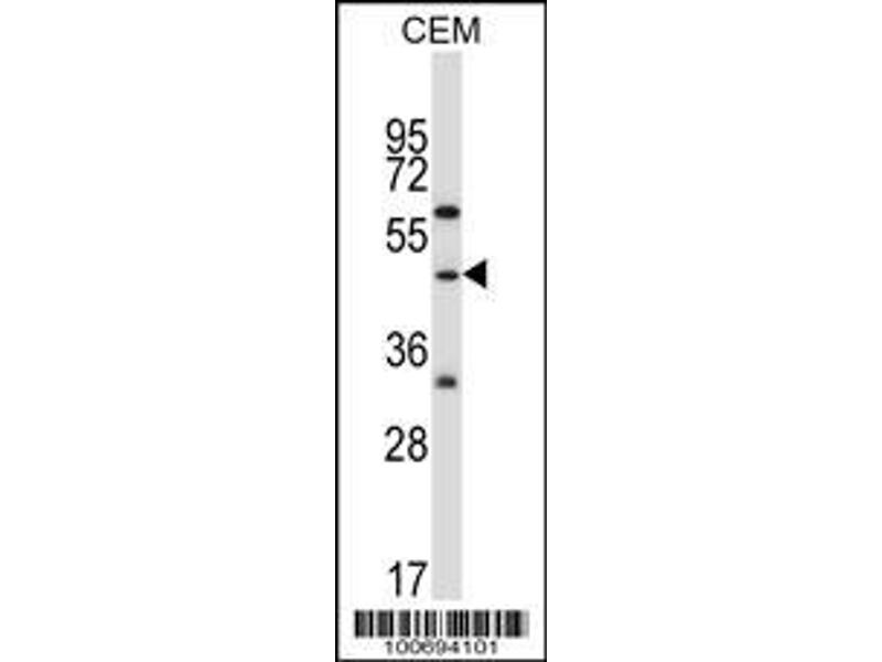 Western Blotting (WB) image for anti-CBL antibody (Cas-Br-M (Murine) Ecotropic Retroviral Transforming Sequence) (AA 1-30) (ABIN388071)