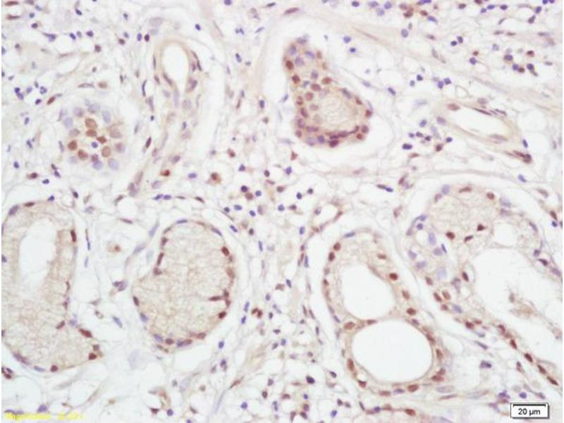 Immunohistochemistry (IHC) image for anti-XPC antibody (Xeroderma Pigmentosum, Complementation Group C) (AA 880-920) (ABIN719171)
