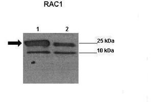 Western Blotting (WB) image for anti-RAC1 (Middle Region) antibody (ABIN2787398)