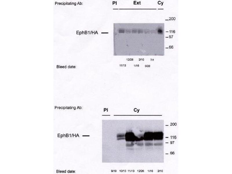 image for anti-EPH Receptor B1 (EPHB1) antibody (ABIN264959)