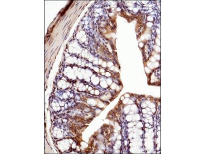 Immunohistochemistry (Paraffin-embedded Sections) (IHC (p)) image for anti-Tumor Necrosis Factor (TNF) (AA 100-200), (Internal Region) antibody (ABIN446837)