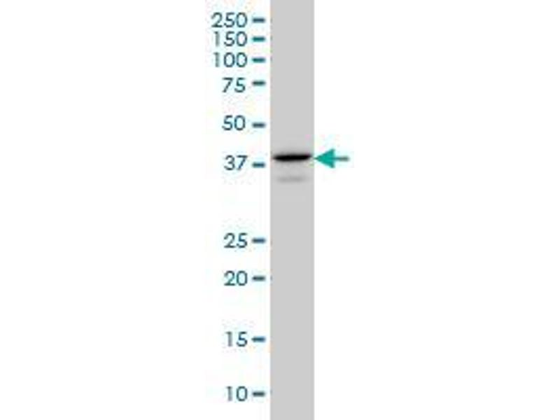 Western Blotting (WB) image for anti-E2F4 antibody (E2F Transcription Factor 4, P107/p130-Binding) (AA 211-301) (ABIN394384)