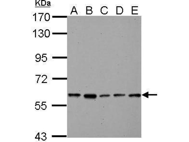 Western Blotting (WB) image for anti-Pyruvate Kinase, Liver and RBC (PKLR) (AA 254-574) antibody (ABIN554103)